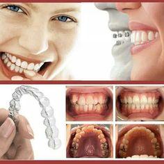 Ortodonzia Invisibile Chiedici più informazioni!;)0114509750