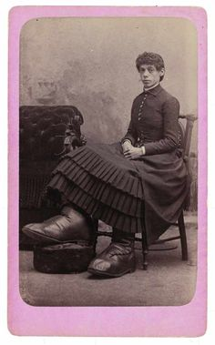 """Photographer Charles Eisenmann began photographing portraits of show people from dime museums in the 1870s. While photographing """"ordinary"""" people in the basic conventional form, Eisenmann continued working on his archive of """"freaks"""" throughout the 1870s and 80s, which he sold in the cabinet style as collectables."""