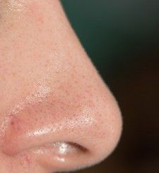 Blackheads are really a skin problem which may occur at any age and at any time. Blackheads commonly occur on the face particularly upon your nose and on chin. Witch Hazel Uses, Blackhead Remedies, Top 10 Home Remedies, Acne Skin, Skin Problems, Beauty Routines, Pretty Face, Pet Care, Video Photography