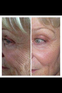 Amazing breakthrough in anti-age SkinCare product! 30 day money back guarantee!  Www.raeleneandrichard.nerium.com