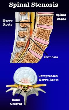 What is Stenosis of the Spine? #DrJeff #BackPainBlog #Stenosis