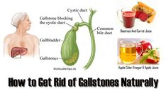 The Recipe That Has Saved Many - а Natural way of Removing Gallstones