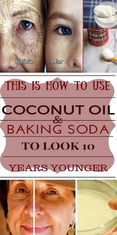 Look 10 Years Younger With Amazing Coconut Oil & Baking Soda Recipe http://wp.me/p8hm4C-29z