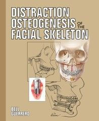 Bell - Distraction Osteogenesis of the Facial Skeleton