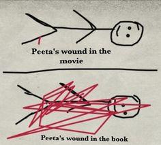 Old but.... Peeta's wound. ;P