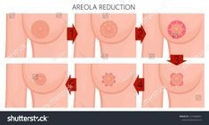 Vector illustration of the large areola reduction before and after plastic surgery. Front view (close up) of a young woman breast. For advertising of plastic surgery and medical publications. Very Early Pregnancy Signs, Search Engine Advertising, Tummy Tuck Surgery, After Surgery, Tummy Tucks, Plastic Surgery, Royalty Free Photos, Young Women, Body Care