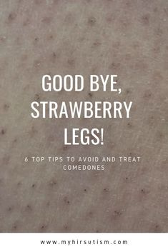 Comedones or strawberry legs are annoying. Here's how to get rid of them for. Comedones or str At Home Hair Removal, Wax Hair Removal, Hair Removal Cream, Bumps On Legs, Ingrown Leg Hair, Shaving Bumps, Bump Hairstyles, Skin Bumps, Smaller Pores