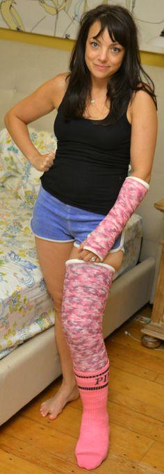 full leg cast
