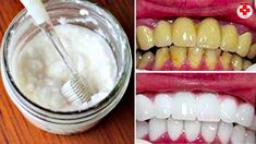 These are 2 most effective ways to use coconut oil to whiten teeth, fight bad halitosis, reduce plaque and gingivitis and prevent tooth decay Teeth Whitening Procedure, Teeth Whitening Remedies, Best Teeth Whitening, Finger Yoga, Dentist Day, Coconut Oil For Teeth, Coconut Benefits, Teeth Bleaching, Receding Gums