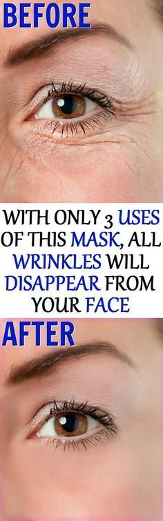 With Only 3 Uses Of This Mask All Wrinkles Will Disappear From Your Face! – Airplus