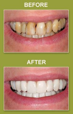 Dental veneers are expensive but marketing does not always offer dental veneers are expensive but marketing does not always offer everything that customers should know about any procedure information related to solutioingenieria Image collections