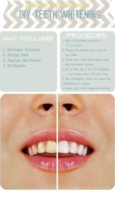 "DIY TEETH WHITENER!!!!...""White teeth! From A Dentist...Use A Little Toothpaste, Mix In One Tsp Baking Soda Plus One Tsp Of Hydrogen Peroxide, 1/2 Tsp Water... Thoroughly Mix Then Brush Your Teeth For Two Minutes Once A Week Until You Have Reached The Results You Want...Once Your Teeth Are Good And White, Limit Yourself To Using The Whitening Treatment Once Every Month Or Two...NOTE: NO LINK..."