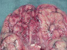 Hemorrhagic necrosis of brain tissue due to Naegleria fowleri Primary Amebic Meningoencephalitis.