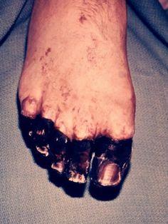 Pictures of Bubonic Plague: Bubonic Plague Pictures: Foot Gangrene
