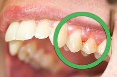 Best Home Remedies for Gingivitis If you had a tooth infection and also having so much pain, then do not worry. Here we share some easy naturalhome remedies for a tooth infection. This type of infecti Natural Treatments, Natural Cures, Natural Health, Tooth Infection, Cleanse Your Liver, Loose Tooth, Gum Health, Oral Health, Dental Health