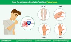 You can treat Pneumonia with these 4 Acupressure points. #Modernreflexology #Reflexology #Acupressure #Pneumonia #obatradangparuparu #obatasma What Causes Pneumonia, Pneumonia Symptoms, Viral Infection, Bacterial Infection, Coughing Up Mucus, Having Trouble Swallowing, Pleural Effusion