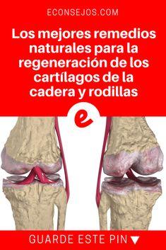 Rodillas dolor | Los mejores remedios naturales para la regeneración de los cartílagos de la cadera y rodillas | Este es un consejo especial para quienes sufren de artritis, dolores en las rodillas, espalda y en todas las articulaciones del cuerpo. Lea y aprenda aquí #dolorespalda