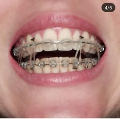 Braces and Retainers-Orthodontics – Lingual – All For Garden Dental Braces, Teeth Braces, Lingual Braces, Misaligned Teeth, Getting Braces, Braces Girls, Invisible Braces, Crooked Teeth, Braces Colors