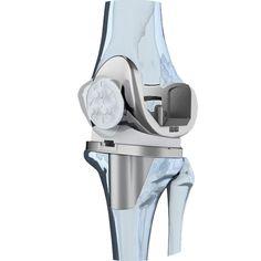 Diz Protezi ve Revizyon Ameliyatı