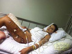 หมดสวยเลยทีนี้ เมื่อ Andressa Urach นางงามก้นสวยชาวบราซิล ปี 2012 ต้องเข้ารับการรักษาแผลขาเน่าเพราะเจอพิษซิลิโคนที่เธอได้ทำไว้นั่นเอง….....