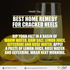 Remedies for dry, cracked heels.