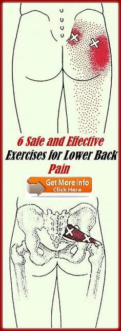6 Safe and Effective Exercises for Lower Back Pain Lower Back Exercises, Low Back Pain, How To Stay Healthy, Workout, Lower Backs, Yoga, Work Outs, Yoga Tips, Yoga Sayings