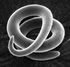 As referenced in the most recent episode of Triqinella. This Week in Parasitism, Dickson Despommier, This image of T. spiralis was taken by Despommier himself.    The images in this collection, taken by Despommier, are free to use as long as you give him the appropriate credit.