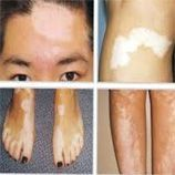 Ayurvedic-Herbal medicine for LEUCODERMA (White patches over the skin)-Youngever