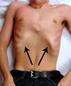 3 Steps for fixing flared ribs without taking a surgery. Highly successful method that is proven for repairing flared ribs and pectus excavatum. Marfan Syndrome, Piriformis Syndrome, Rib Pain, Health And Wellness, Health Fitness, Ab Core Workout, Easy Workouts, Excercise, Back Pain