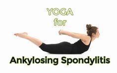 for Ankylosing Spondylitis Yoga provides a means of gentle movement that can help people suffering from Ankylosing Spondylitis.Yoga provides a means of gentle movement that can help people suffering from Ankylosing Spondylitis. Ankylosing Spondylitis Exercise, Anklosing Spondylitis, Kripalu Yoga, Scoliosis Exercises, Neck Exercises, Stretching Exercises, Psoriatic Arthritis, Reactive Arthritis, Ashtanga Yoga