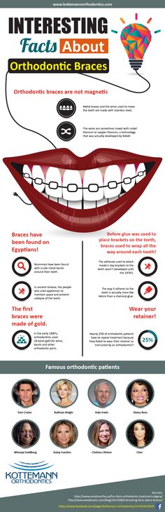 http://www.kottemannorthodontics.com/for-all-ages.php - Orthodontic braces are designed for proper alignment of teeth. Learn the facts about orthodontic braces by checking out this creative infographic. Visit us at kottemannorthodontics.com for more information.