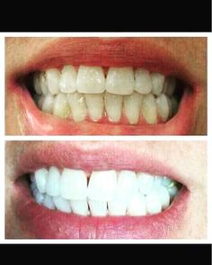 """Hello everyone!!! Thought I would share this with you. I saw a post by David Ryan about a teeth whitening product that he recommends people use to help whiten their teeth!! Want to hear the best part: ❎No peroxides or bleach ❎Doesn't cause any pain or se http://getfreecharcoaltoothpaste.tumblr.com"
