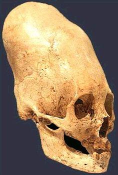 Aliens And Ufos, Ancient Aliens, Ancient Art, Ancient History, Alien Skull, Human Skull, Peru, Nephilim Giants, Alien Photos