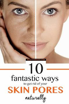 10 Fantastic Ways To Get Rid Of Your Skin Pores Naturally