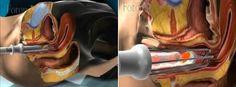 laserowe leczenie nietrzymania moczu wizualizacja