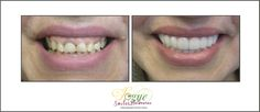 Tired of hiding your smile from others? Wish you could finally do something about your discolored, cracked, or missing teeth? But can't afford expensive works? Ask about our SNAP ON SMILE. Vogue Smiles Melbourne can help you improve your smiles.  http://drzenaidycastro.com.au/, http://melbournecosmeticdentistry.com.au/ http://dentist-in-melbourne.com.au/ https://www.youtube.com/channel/UC0dLOqSdLKJqrrzuP3axNxA, https://heartandsoulwhisperer.com.au/