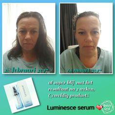 Zelf ook nu met een kuur bezig met het Luminesce serum. Wauw, en nu al veel resultaat na 2 weken 😍 bestellen? www.justbebeautiful.jeunesseglobal.com