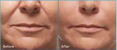 "**"" Erase the Lines of Time ""**  Get a free syringe of Radiesse when you buy the first syringe at $799. This means buy your 1st syringe of Radiesse and get the 2nd free!   Radiesse fillers are used to treat the nasolabial folds on the face. The before and after picture above was taken after only two syringes of Radiesse. It can also be used for cheek contouring. The treatment usually lasts up to one year."