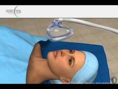 Eyelid surgery - Upper - Cancun