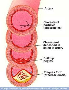 Development of atherosclerosis: If you have too many cholesterol particles in your blood, cholesterol may accumulate on your artery walls. Eventually, deposits called plaques may form. The deposits may narrow — or block — your arteries. These plaques can also burst, causing a blood clot.