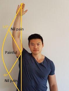 Shoulder Impingement: The 8 steps to completely fix it! Shoulder Rehab Exercises, Neck And Shoulder Exercises, Shoulder Injuries, Shoulder Muscles, Shoulder Workout, Shoulder Impingement Surgery, Shoulder Tendonitis Exercises, Shoulder Pain Relief, Shoulder Joint