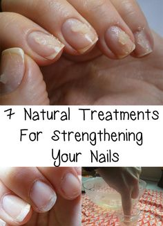 7 Natural Treatments For Strengthening Your Nails