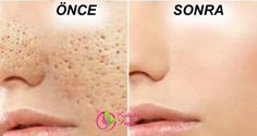 The open pores will disappear from your skin forever in just 3 days. We all have millions of skin pores on our skin but they are not visible with naked eye but as your get older or sometimes becaus… Beauty Care, Diy Beauty, Beauty Hacks, Skin Toner, Oily Skin, Facial Care, Tips Belleza, Skin Treatments, Beauty Secrets