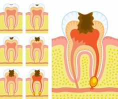 Oral diseases affect billion people worldwide, with dental caries being the most prevalent condition.Cavities can affect anybody at any age. Dental Facts, Dental Humor, Dental Hygiene, Dental Assistant, Gum Health, Dental Health, Oral Health, Healthy Tongue, Healthy Teeth