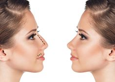 Thought the only way to get a slimmer and sharper nose was through surgery? Think again.