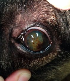 How To Remove Eye Cataract Naturally