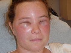 Mit tegyen méhcsípés, darázscsípés esetén!