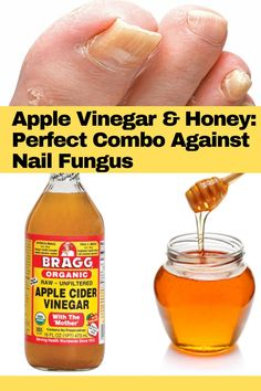 Honey is widely known for it's healing properties. But did you know that you can combine honey and apple cider vinegar to create a natural nail fungus treatment? Read our article for more information on this nail fungus home treatment.