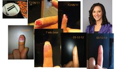 """""""Zija Oil helped her recover from a major wound.""""  Full Story Here: http://moringamiracle.wordpress.com/2012/05/03/zija-oil-testimonial/"""