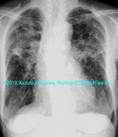 11. その他の肺疾患 症例098:サルコイドーシス 別症例:発症後16年経過した症例 胸部単純X線写真,『コンパクトX線アトラスBasic 胸部単純X線写真アトラス vol.1 肺』